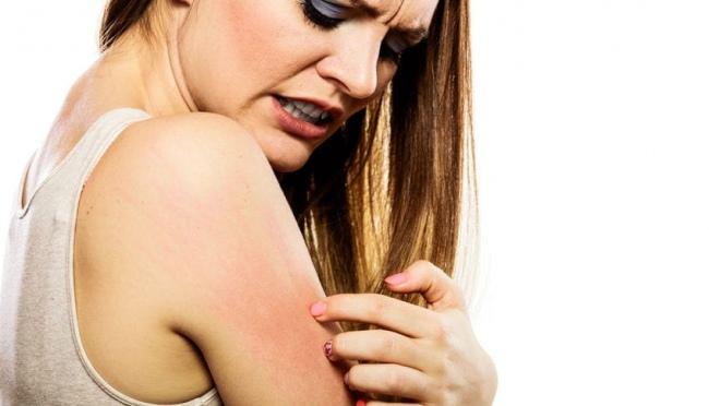 La mejor crema para la dermatitis atópica en adultos